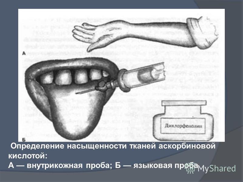 Определение насыщенности тканей аскорбиновой кислотой: А внутрикожная проба; Б языковая проба