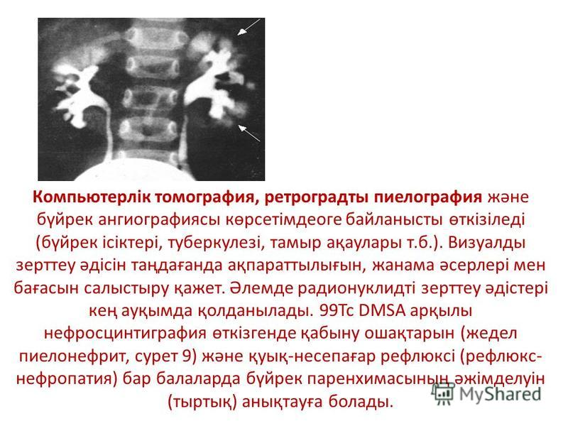 Компьютерлік томография, ретроградты пиелография және бүйрек ангиографиясы көрсетімдеоге байланысты өткізіледі (бүйрек ісіктері, туберкулезі, тамыр ақаулары т.б.). Визуалды зерттеу әдісін таңдағанда ақпараттылығын, жанама әсерлері мен бағасын салысты
