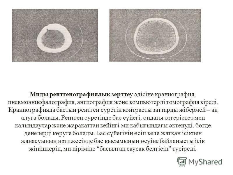 Миды рентгенографиялық зерттеу әдісіне краниография, пневмоэнцефалография, ангиография және компьютерлі томография кіреді. Краниографияда бастың рентген суретін контрасты заттарды жібермей – ақ алуға болады. Рентген суретінде бас сүйегі, ондағы өзгер