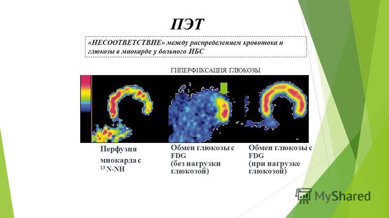 «НЕСООТВЕТСТВИЕ» между распределением кровотока и глюкозы в миокарде у больного ИБС Перфузия миокарда с 13 N-NH Обмен глюкозы с FDG (без нагрузки глюкозой) Обмен глюкозы с FDG (при нагрузке глюкозой) ГИПЕРФИКСАЦИЯ ГЛЮКОЗЫ В ЗОНЕ ГИПОПЕРФУЗИИ ПЭТ