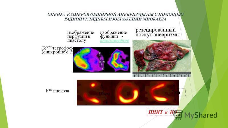 F 18 глюкоза ОЦЕНКА РАЗМЕРОВ ОБШИРНОЙ АНЕВРИЗМЫ ЛЖ С ПОМОЩЬЮ РАДИОНУКЛИДНЫХ ИЗОБРАЖЕНИЙ МИОКАРДА НИИТ и ИО 10 см 7 см изображение перфузии в диастолу изображение функции - амплитудное резецированный лоскут аневризмы Tc 99m тетрофосмин (синхронно с ЭК