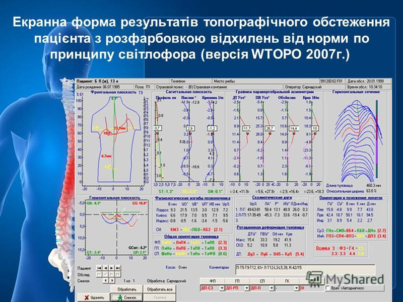 Екранна форма результатів топографічного обстеження пацієнта з розфарбовкою відхилень від норми по принципу світлофора (версія WTOPO 2007г.)