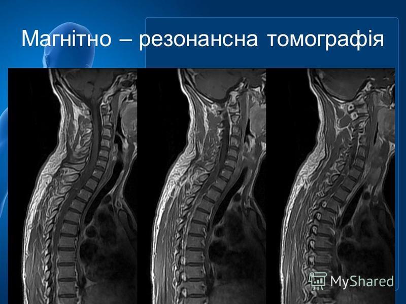 Магнітно – резонансна томографія