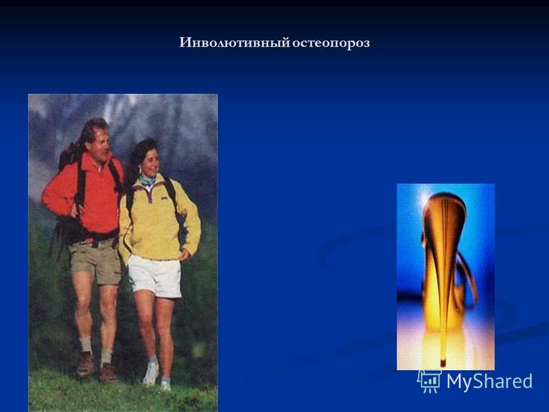 Инволютивный остеопороз