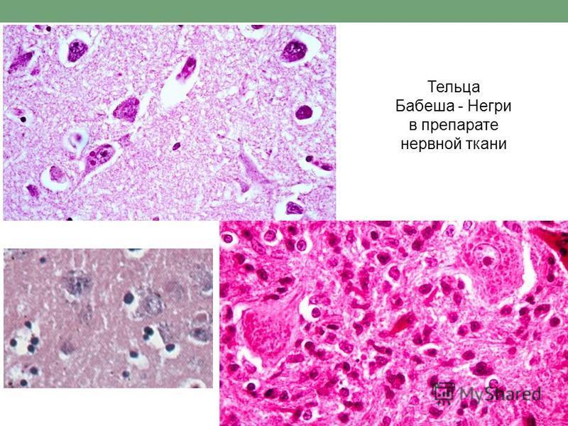 Тельца Бабеша - Негри в препарате нервной ткани