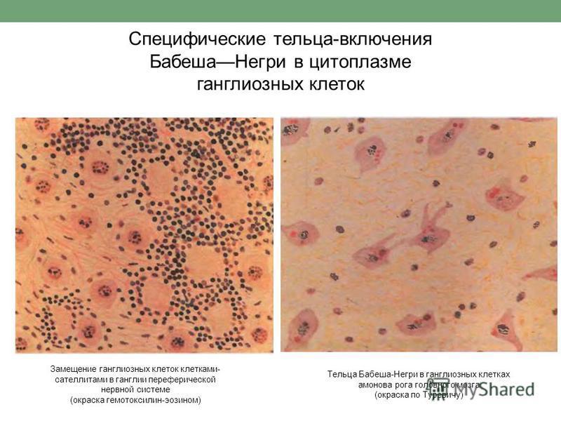 Специфические тельца-включения Бабеша Негри в цитоплазме ганглиозных клеток Замещение ганглиозных клеток клетками- сателлитами в ганглии периферической нервной системе (окраска гематоксилин-эозином) Тельца Бабеша-Негри в ганглиозных клетках мамонова