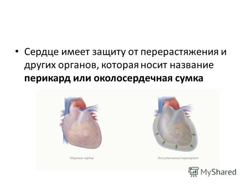 Сердце имеет защиту от перерастяжения и других органов, которая носит название перикард или околосердечная сумка