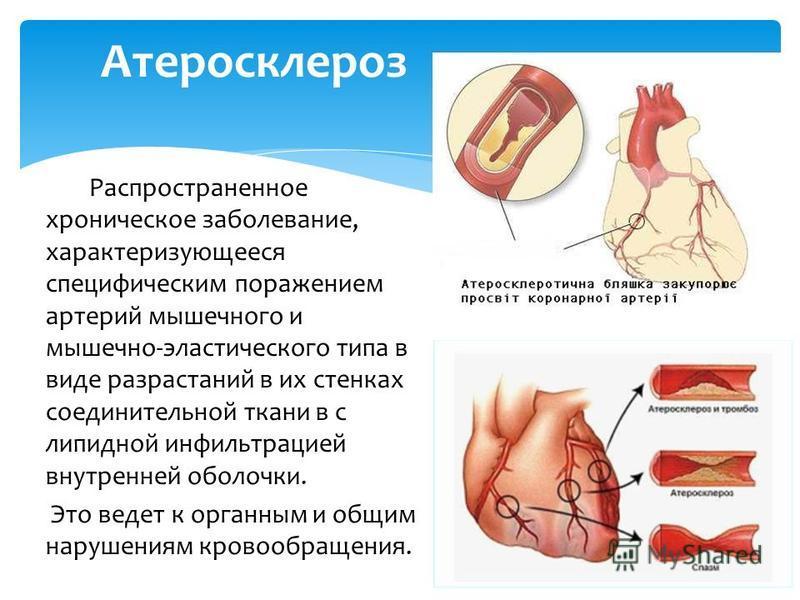 Распространенное хроническое заболевание, характеризующееся специфическим поражением артерий мышечного и мышечно-эластического типа в виде разрастаний в их стенках соединительной ткани в с липидной инфильтрацией внутренней оболочки. Это ведет к орган