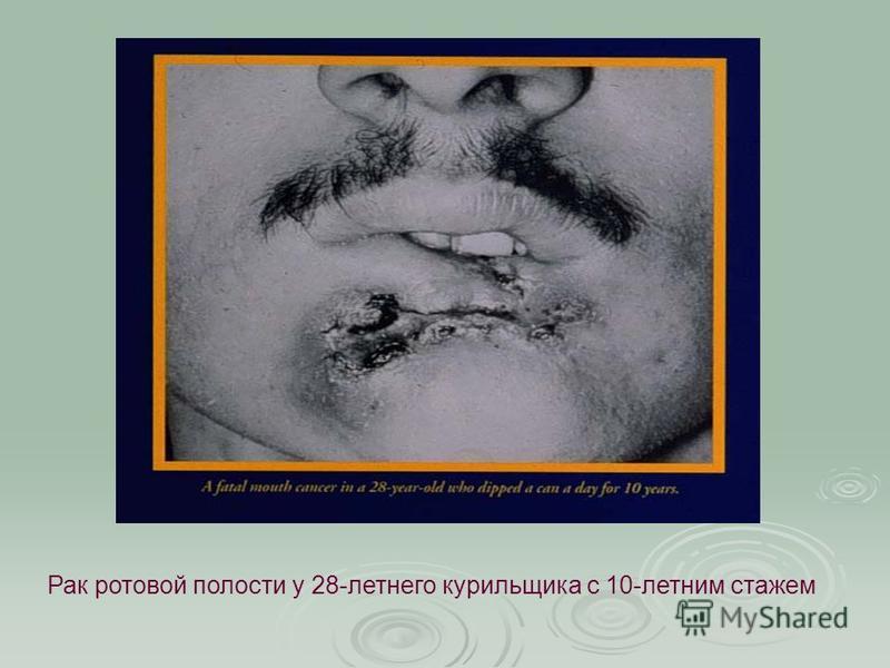 Рак ротовой полости у 28-летнего курильщика с 10-летним стажем