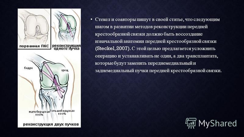 Стекел и соавторы пишут в своей статье, что следующим шагом в развитии методов реконструкции передней крестообразной связки должно быть воссоздание изначальной анатомии передней крестообразной связки (Steckel, 2007). С этой целью предлагается усложни