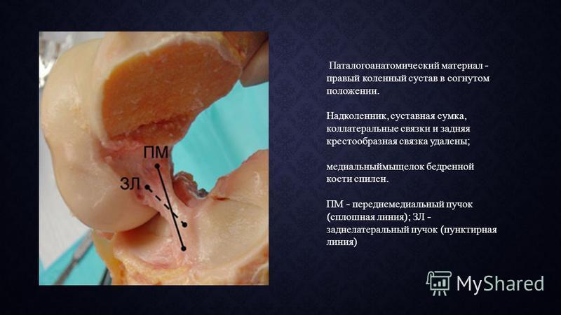 Паталогоанатомический материал - правый коленный сустав в согнутом положении. Надколенник, суставная сумка, коллатеральные связки и задняя крестообразная связка удалены ; медиальный мыщелок бедренной кости спилен. ПМ - переднемедиальный пучок ( сплош
