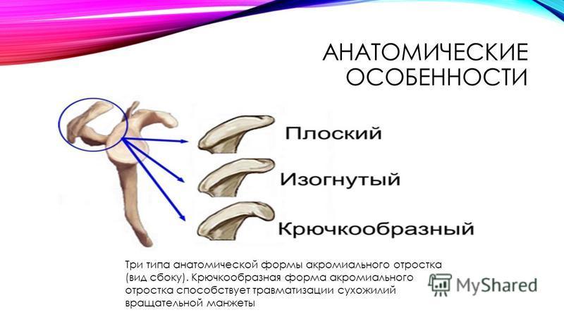 АНАТОМИЧЕСКИЕ ОСОБЕННОСТИ Три типа анатомической формы акромиального отростка (вид сбоку). Крючкообразная форма акромиального отростка способствует травматизации сухожилий вращательной манжеты