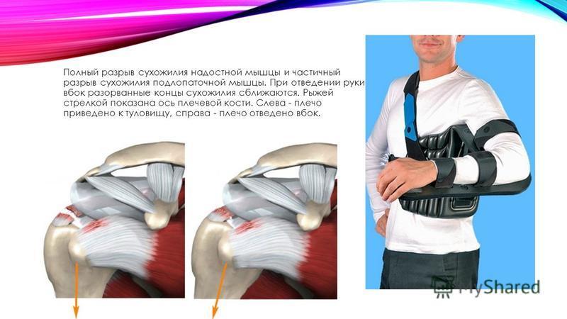 повреждение сухожилия надостной мышцы плечевого сустава