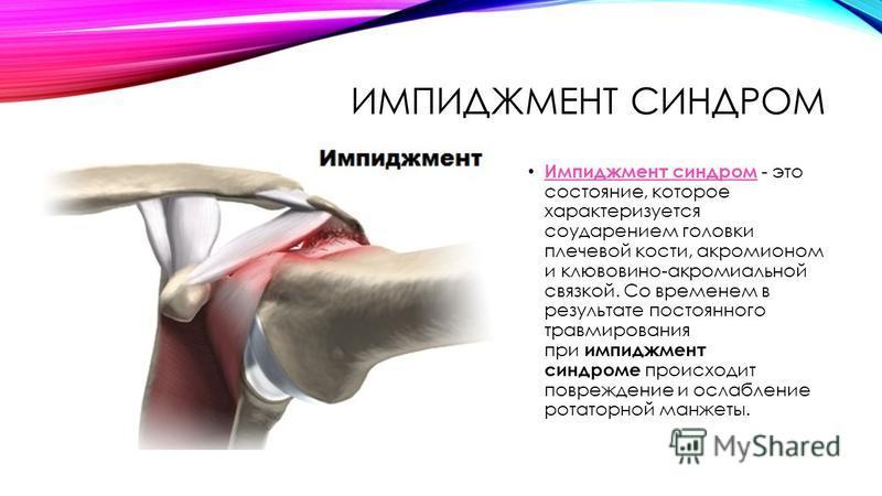ИМПИДЖМЕНТ СИНДРОМ Импиджмент синдром - это состояние, которое характеризуется соударением головки плечевой кости, акромионом и клювовидно-акромиальной связкой. Со временем в результате постоянного травмирования при импиджмент синдроме происходит пов