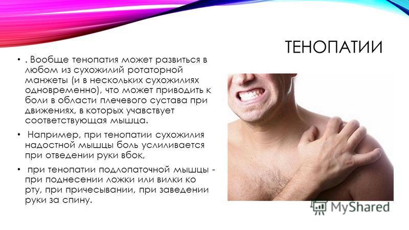 ТЕНОПАТИИ. Вообще тенопатия может развиться в любом из сухожилий ротаторной манжеты (и в нескольких сухожилиях одновременно), что может приводить к боли в области плечевого сустава при движениях, в которых участвует соответствующая мышца. Например, п