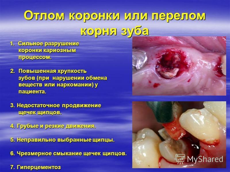 Отлом коронки или перелом корня зуба 1. Сильное разрушение 1. Сильное разрушение коронки кариозным коронки кариозным процессом. процессом. 2. Повышенная хрупкость 2. Повышенная хрупкость зубов (при нарушении обмена зубов (при нарушении обмена веществ