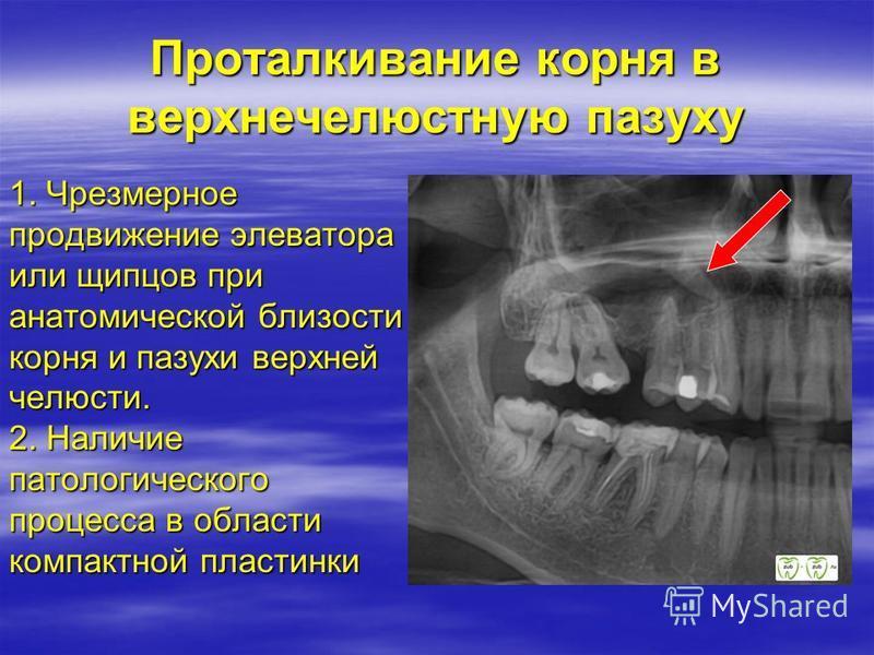 Проталкивание корня в верхнечелюстную пазуху 1. Чрезмерное продвижение элеватора или щипцов при анатомической близости корня и пазухи верхней челюсти. 2. Наличие патологического процесса в области компактной пластинки