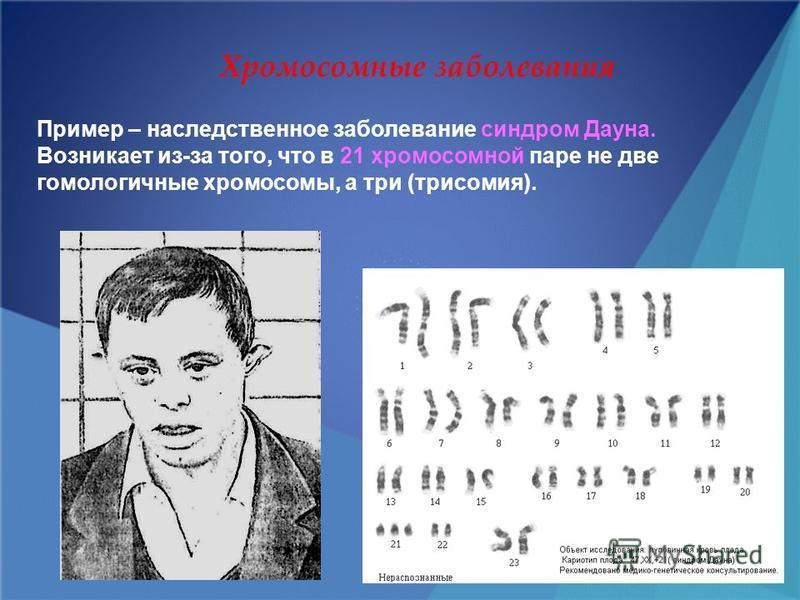Хромосомные заболевания Пример – наследственное заболевание синдром Дауна. Возникает из-за того, что в 21 хромосомной паре не две гомологичные хромосомы, а три (трисомия).