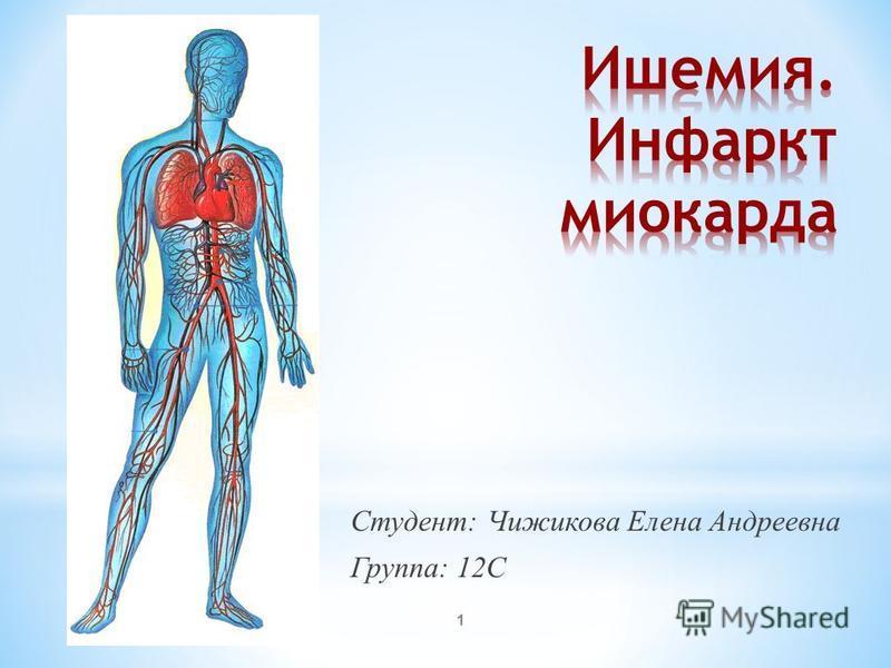 Студент: Чижикова Елена Андреевна Группа: 12С 1
