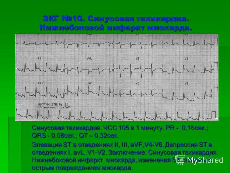 ЭКГ 10. Синусовая тахикардия. Нижнебоковой инфаркт миокарда. Синусовая тахикардия. ЧСС 105 в 1 минуту. PR - 0,16 сек.; QRS - 0,08 сек.; QT – 0,32 сек. Элевация ST в отведениях II, III, aVF,V4-V6. Депрессия ST в отведениях I, avL, V1-V2. Заключение: С