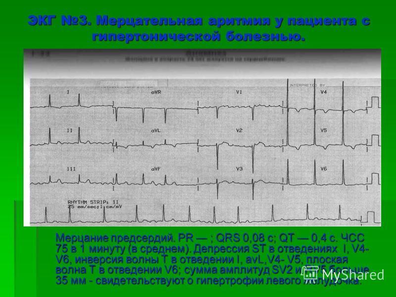 ЭКГ 3. Мерцательная аритмия у пациента с гипертонической болезнью. Мерцание предсердий. PR ; QRS 0,08 с; QT 0,4 с. ЧСС 75 в 1 минуту (в среднем). Депрессия ST в отведениях I, V4- V6, инверсия волны Т в отведении I, avL,V4- V5, плоская волна Т в отвед