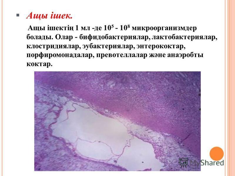 Ащы ішек. Ащы ішектің 1 мл -де 10 5 - 10 8 микроорганизмдер болады. Олар - бифидобактериялар, лактобактериялар, клостридиялар, эубактериялар, энтерококтар, порфиромонадалар, превотеллалар және анаэробты коктар.