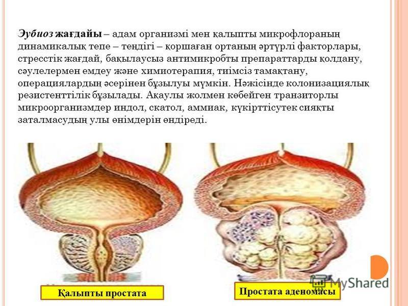 Эубиоз жағдайы – адам организмі мен қ алыпты микрофлораны ң динамикалы қ тепе – те ң дігі – қ орша ғ ан ортаны ң ә рт ү рлі факторлары, стресстік жа ғ дай, ба қ ылаусыз антимикробты препараттарды қ олдану, с ә улелермен емдеу ж ә не химиотерапия, тиі