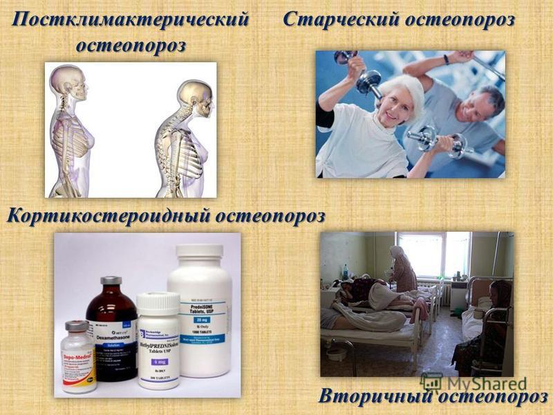 Постклимактерический остеопороз Старческий остеопороз Кортикостероидный остеопороз Кортикостероидный остеопороз Вторичный остеопороз Вторичный остеопороз