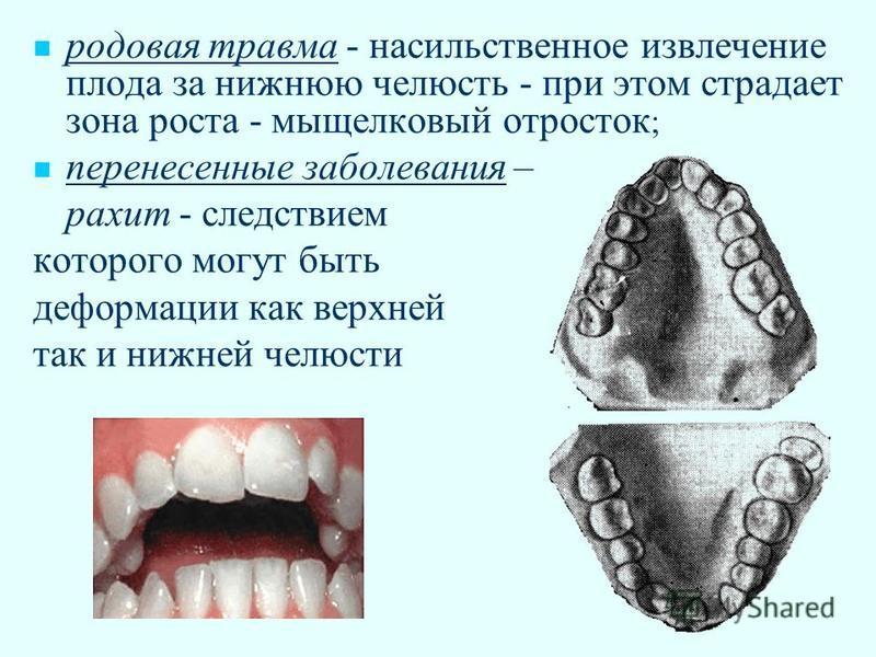 родовая травма - насильственное извлечение плода за нижнюю челюсть - при этом страдает зона роста - мыщелковый отросток ; перенесенные заболевания – рахит - следствием которого могут быть деформации как верхней так и нижней челюсти