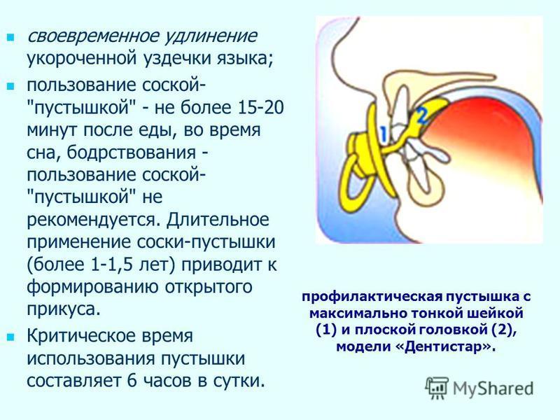 своевременное удлинение укороченной уздечки языка; пользование соской-