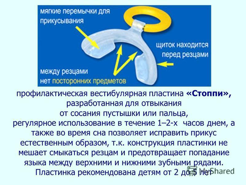 профилактическая вестибулярная пластина «Стоппи», разработанная для отвыкания от сосания пустышки или пальца, регулярное использование в течение 1–2-х часов днем, а также во время сна позволяет исправить прикус естественным образом, т.к. конструкция