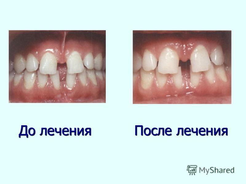 До лечения После лечения