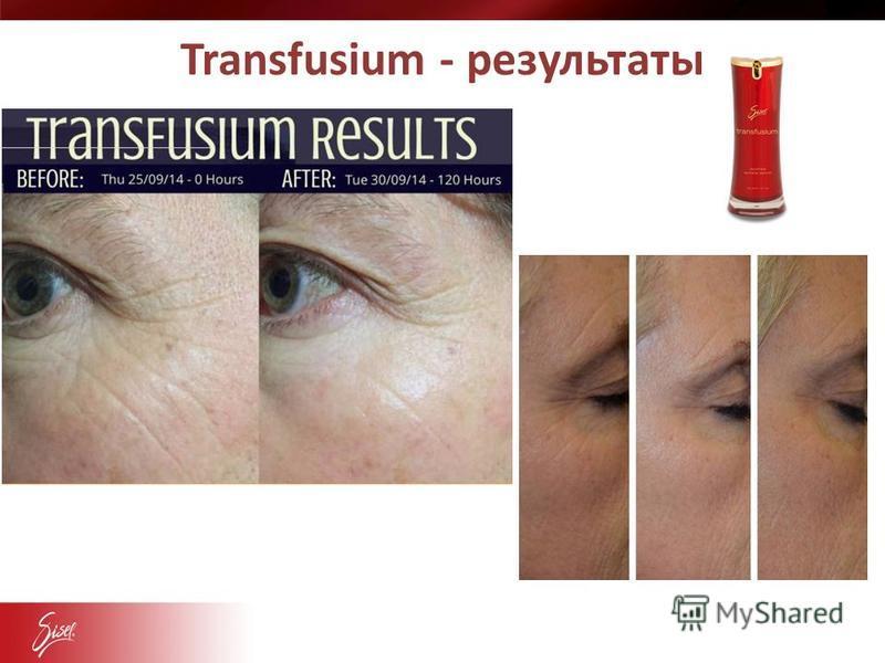 Transfusium - результаты