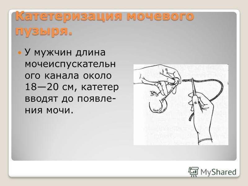 Катетеризация мочевого пузыря. У мужчин длина мочеиспускательного канала около 1820 см, катетер вводят до появле ния мочи.
