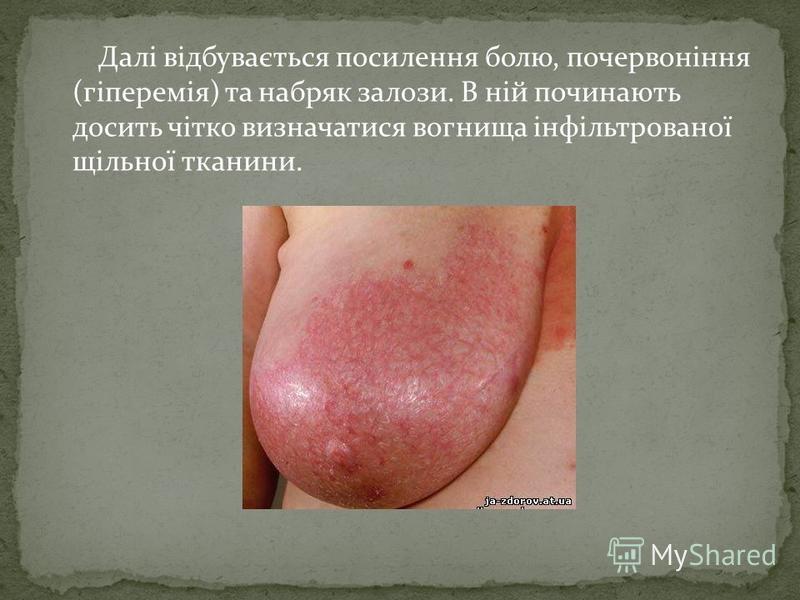 Далі відбувається посилення болю, почервоніння (гіперемія) та набряк залози. В ній починають досить чітко визначатися вогнища інфільтрованої щільної тканини.