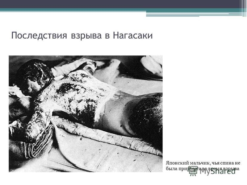 Последствия взрыва в Нагасаки Японский мальчик, чья спина не была прикрыта во время взрыва