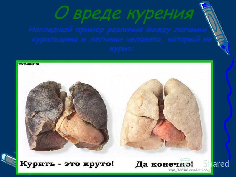 О вреде курения Наглядный пример различия между легкими курильщика и легкими человека, который не курит: