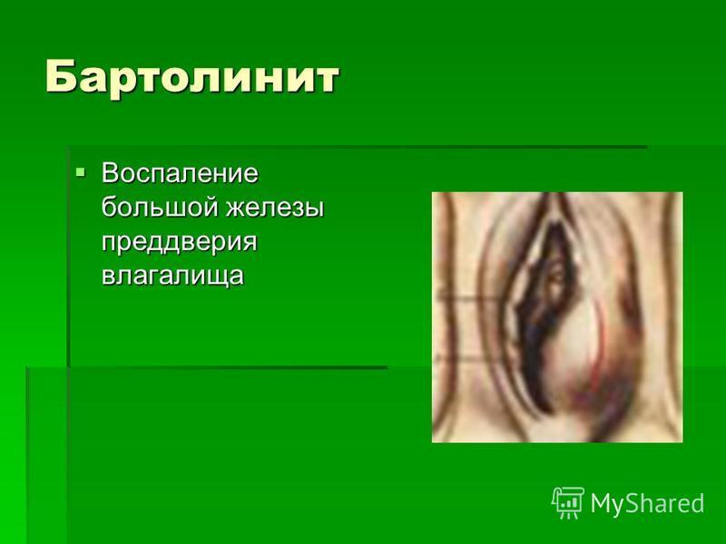 Бартолинит влагалища фото