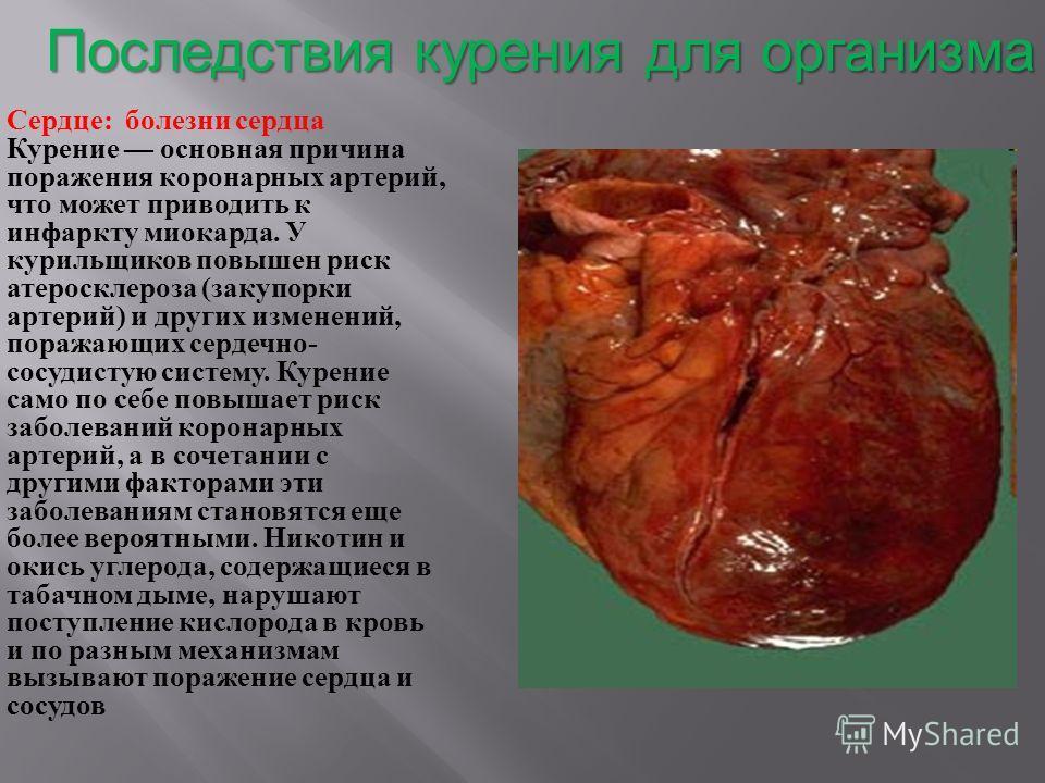 Последствия курения для организма Сердце : болезни сердца Курение основная причина поражения коронарных артерий, что может приводить к инфаркту миокарда. У курильщиков повышен риск атеросклероза ( закупорки артерий ) и других изменений, поражающих се