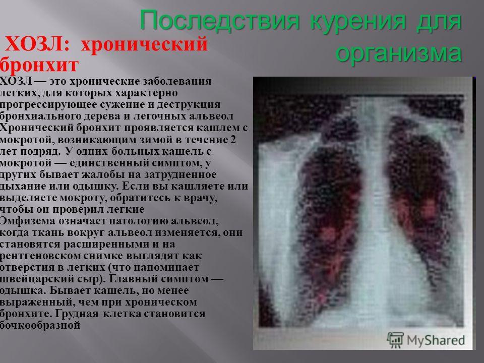 Последствия курения для организма ХОЗЛ : хронический бронхит ХОЗЛ это хронические заболевания легких, для которых характерно прогрессирующее сужение и деструкция бронхиального дерева и легочных альвеол Хронический бронхит проявляется кашлем с мокрото