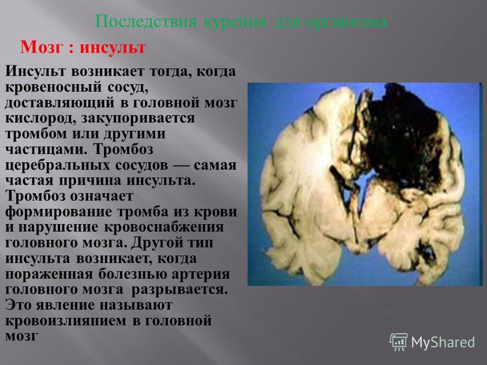 Последствия курения для организма Мозг : инсульт Инсульт возникает тогда, когда кровеносный сосуд, доставляющий в головной мозг кислород, закупоривается тромбом или другими частицами. Тромбоз церебральных сосудов самая частая причина инсульта. Тромбо