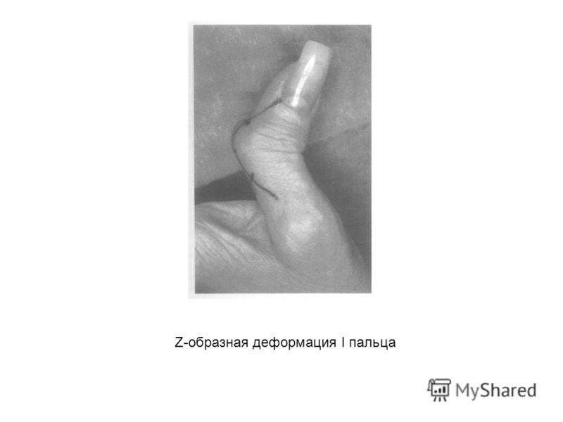 Z-образная деформация I пальца