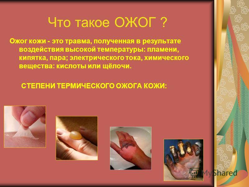 Что такое ОЖОГ ? Ожог кожи - это травма, полученная в результате воздействия высокой температуры: пламени, кипятка, пара; электрического тока, химического вещества: кислоты или щёлочи. СТЕПЕНИ ТЕРМИЧЕСКОГО ОЖОГА КОЖИ: