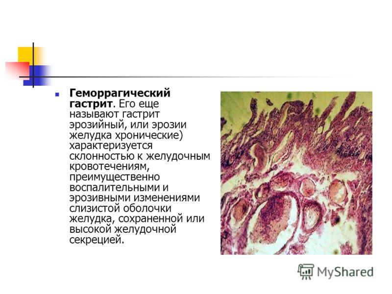 Геморрагический гастрит. Его еще называют гастрит эрозийный, или эрозии желудка хронические) характеризуется склонностью к желудочным кровотечениям, преимущественно воспалительными и эрозивными изменениями слизистой оболочки желудка, сохраненной или
