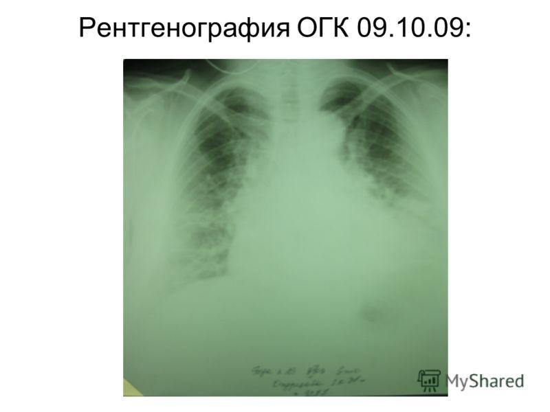 Рентгенография ОГК 09.10.09:
