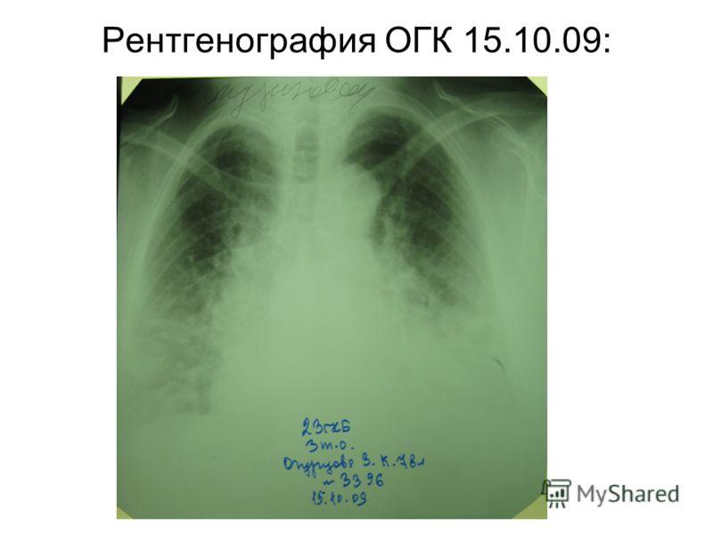 Рентгенография ОГК 15.10.09: