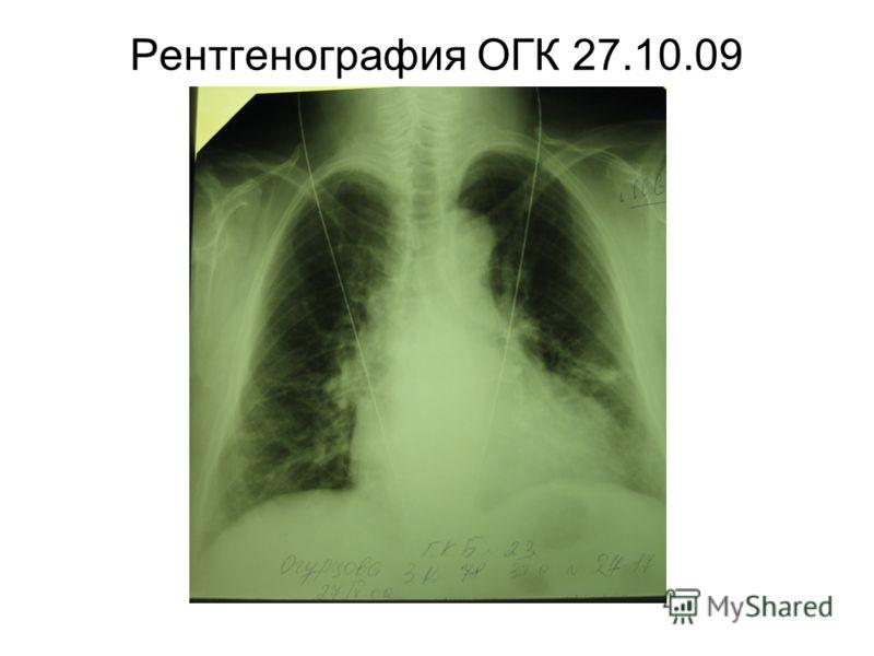 Рентгенография ОГК 27.10.09
