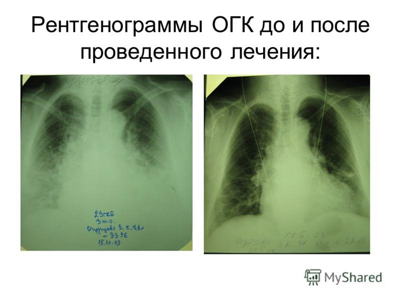 Рентгенограммы ОГК до и после проведенного лечения: