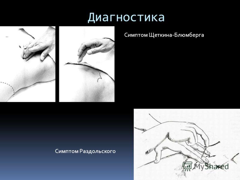 Диагностика Симптом Щеткина-Блюмберга Симптом Раздольского
