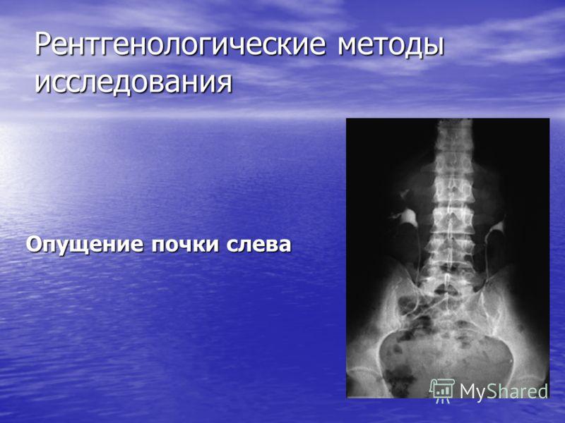 Рентгенологические методы исследования Опущение почки слева